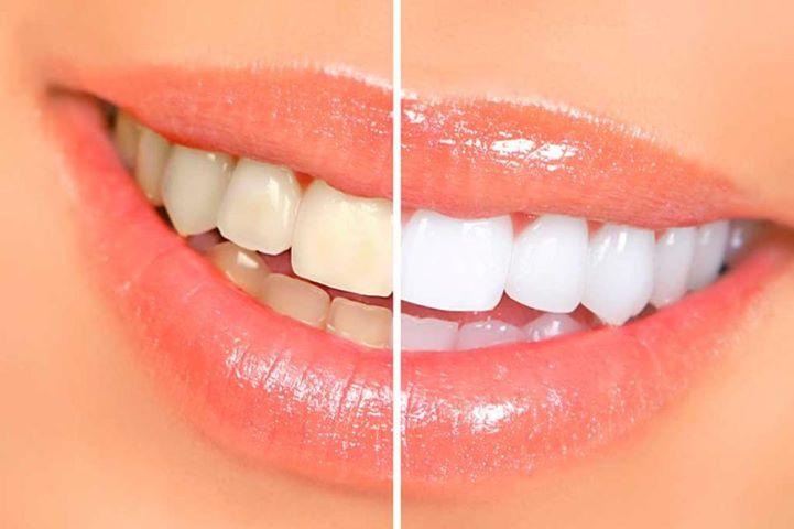 albire-dinti