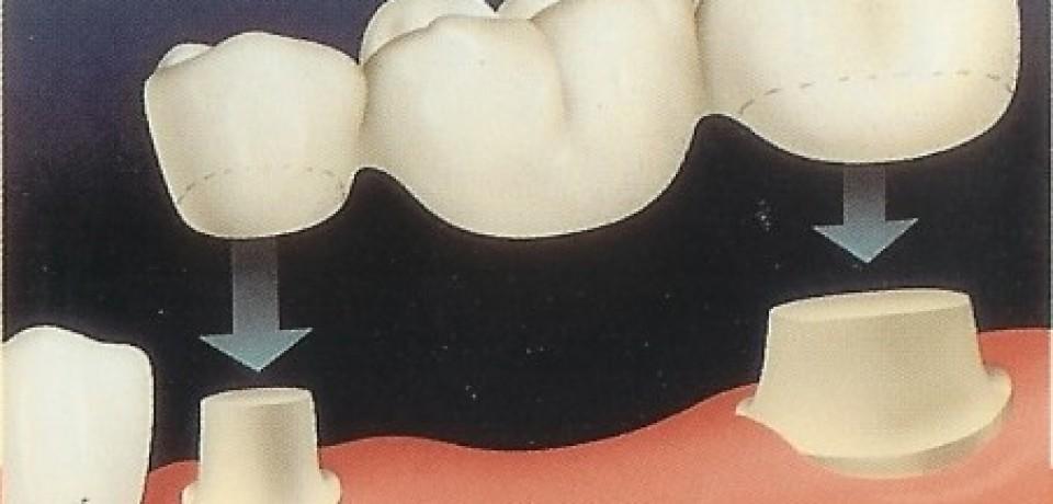 Coroana ceramica