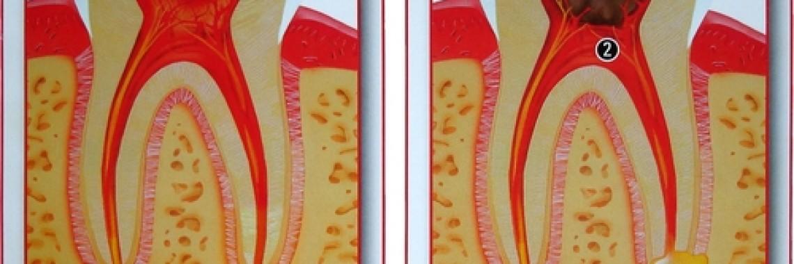 Tratamentulul cariilor si durerilor dentare